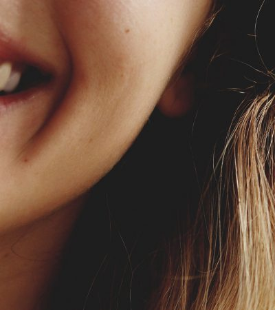 Tanden bleken beauty royale