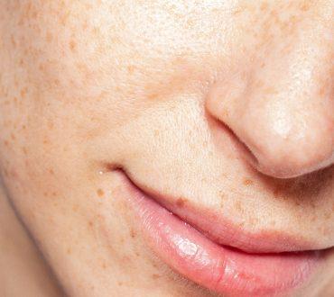 beauty royale gezichtsbehandeling (3)